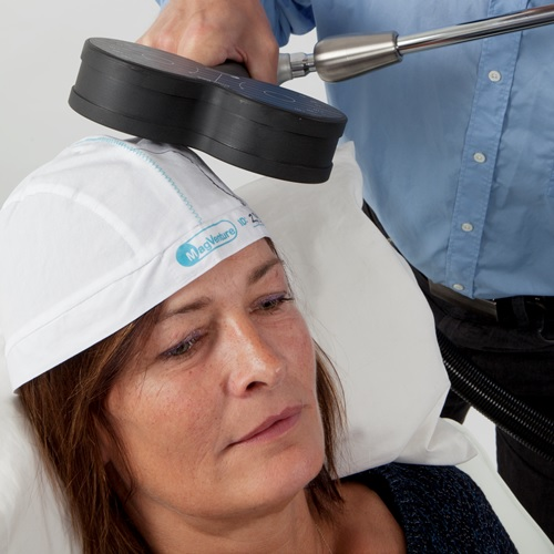 how to get transcranial magnetic stimulation