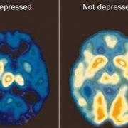 depressed brain scan